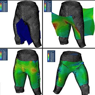 Compression garment design
